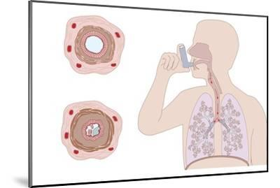 Asthma Pathology And Treatment, Diagram-Peter Gardiner-Mounted Photographic Print