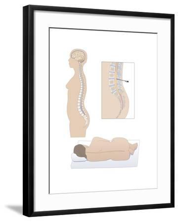 Lumbar Puncture, Artwork-Peter Gardiner-Framed Photographic Print