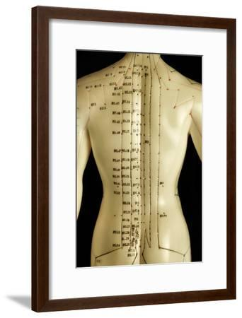 Chinese Acupuncture Model-Doncaster and Bassetlaw-Framed Photographic Print