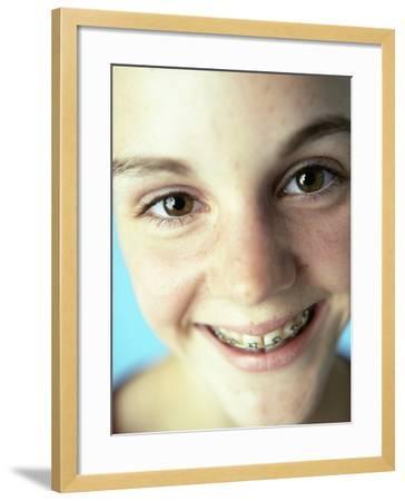 Dental Braces-Ian Boddy-Framed Photographic Print