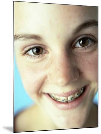 Dental Braces-Ian Boddy-Mounted Photographic Print