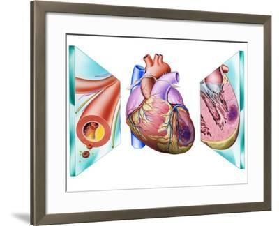 Heart Attack-John Bavosi-Framed Photographic Print