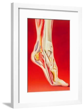 Artwork Showing Calcaneal Spur And Foot Pain-John Bavosi-Framed Photographic Print