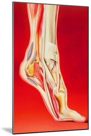 Artwork Showing Calcaneal Spur And Foot Pain-John Bavosi-Mounted Photographic Print