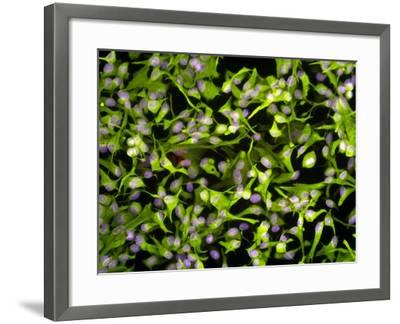 Astrocyte Brain Cells, Light Micrograph-Riccardo Cassiani-ingoni-Framed Photographic Print