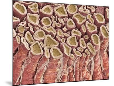 Spinal Root Nerves, SEM-Thomas Deerinck-Mounted Photographic Print