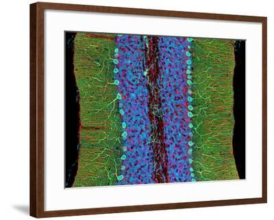 Cerebellum Tissue, Light Micrograph-Thomas Deerinck-Framed Photographic Print