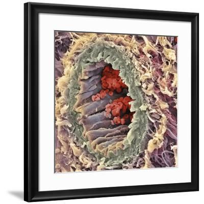 Artery SEM-Steve Gschmeissner-Framed Photographic Print