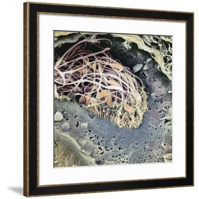 Epididymis, SEM-Steve Gschmeissner-Framed Photographic Print