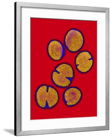MRSA Bacteria-Biomedical Imaging-Framed Photographic Print