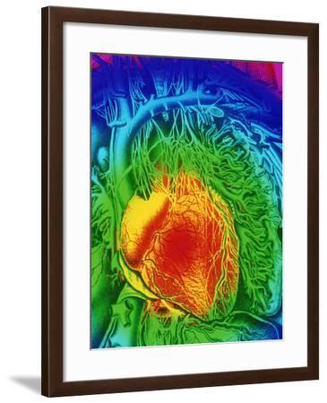 Mascagni Artwork of Human Heart with Its Nerves-Mehau Kulyk-Framed Photographic Print