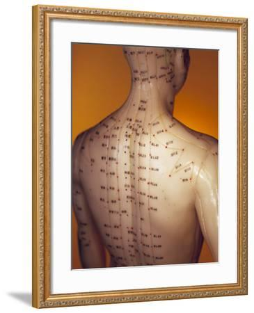 Acupuncture Model-Lawrence Lawry-Framed Photographic Print