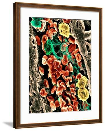 Blood Clot, SEM-Science Photo Library-Framed Photographic Print