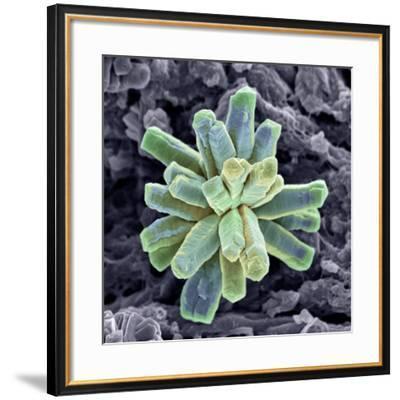 Calcium Phosphate Crystal, SEM-Steve Gschmeissner-Framed Photographic Print