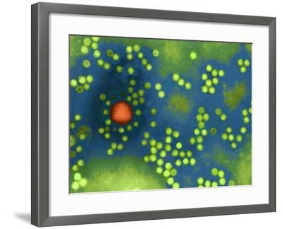 Adeno-associated Virus, TEM-Dr. Linda Stannard-Framed Photographic Print