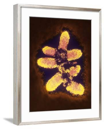False-col TEM of Rabies Virus Particles--Framed Photographic Print