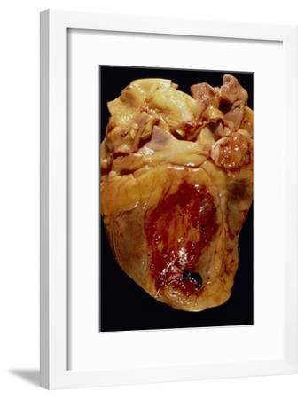Ruptured Heart--Framed Photographic Print
