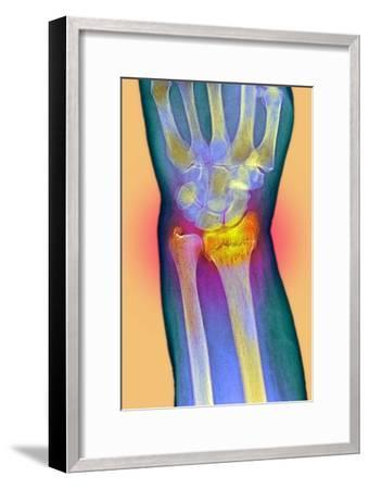Broken Wrist, X-ray-Du Cane Medical-Framed Photographic Print