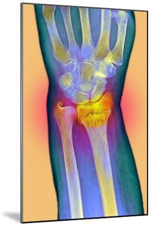 Broken Wrist, X-ray-Du Cane Medical-Mounted Photographic Print