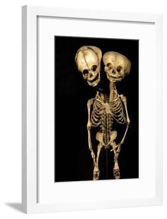 Conjoined Twins-Arno Massee-Framed Photographic Print