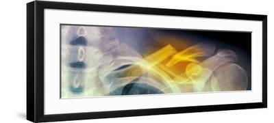 Fractured Collar Bone, X-ray-Du Cane Medical-Framed Photographic Print
