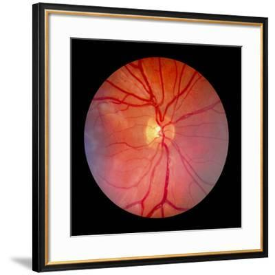Normal Retina of Eye-Rory McClenaghan-Framed Photographic Print