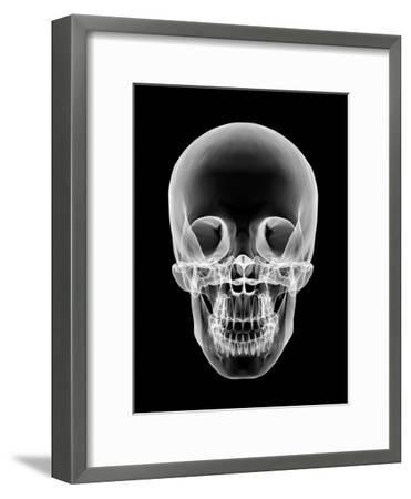 Human Skull, X-ray Artwork-PASIEKA-Framed Photographic Print