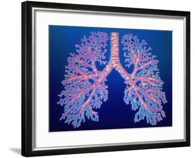 Bronchial Tree of Lungs-PASIEKA-Framed Photographic Print