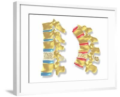 Osteoporosis-PASIEKA-Framed Photographic Print