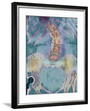 Scoliosis Spine Deformity, X-ray-Science Photo Library-Framed Photographic Print