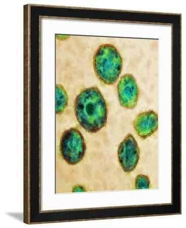 HIV Particles, TEM-Science Photo Library-Framed Photographic Print