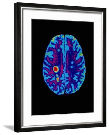 Col. MRI Scan of a Brain with Multiple Sclerosis-Science Photo Library-Framed Photographic Print