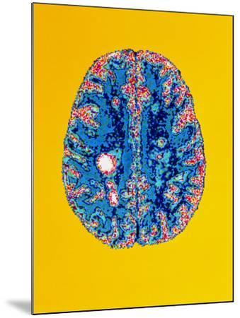 Col. MRI Scan of a Brain with Multiple Sclerosis-Science Photo Library-Mounted Photographic Print