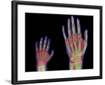 Adult And Child Hand X-rays-Science Photo Library-Framed Photographic Print