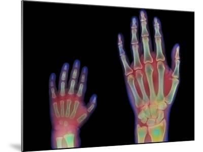 Adult And Child Hand X-rays-Science Photo Library-Mounted Photographic Print