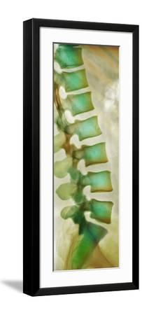 Healthy Lower Spine, X-ray-Science Photo Library-Framed Photographic Print