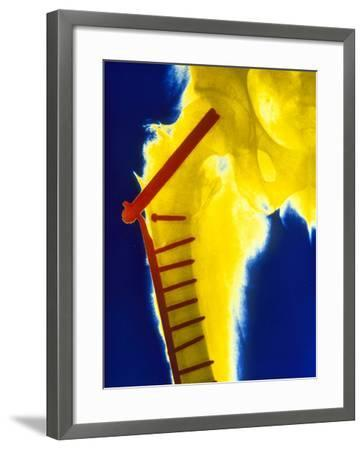 X-ray of the Broken Head of the Femur-Science Photo Library-Framed Photographic Print