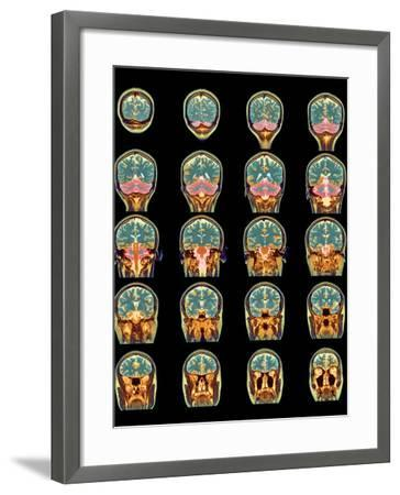 Healthy Brain, MRI Scans-Science Photo Library-Framed Photographic Print