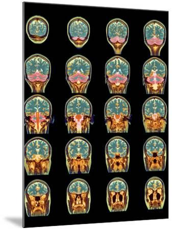Healthy Brain, MRI Scans-Science Photo Library-Mounted Photographic Print
