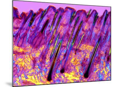 Human Skin, Polarised Light Micrograph-Dr. Keith Wheeler-Mounted Photographic Print