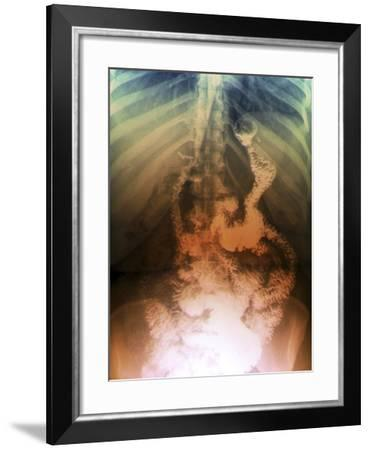Gastric Bypass Surgery, X-ray-ZEPHYR-Framed Photographic Print