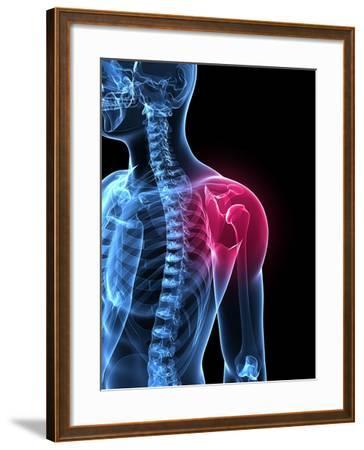 Shoulder Pain, Conceptual Artwork-SCIEPRO-Framed Photographic Print