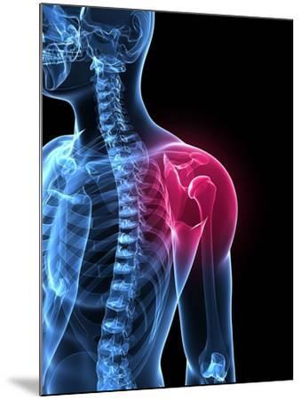 Shoulder Pain, Conceptual Artwork-SCIEPRO-Mounted Photographic Print