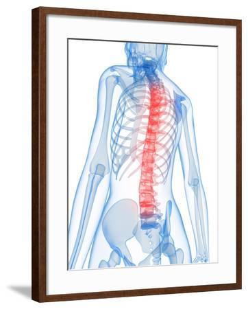 Back Pain, Conceptual Artwork-SCIEPRO-Framed Photographic Print