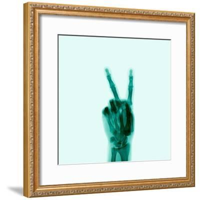 X-Ray of Hand Doing Peace Sign-D. Arky-Framed Photographic Print