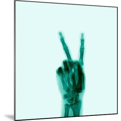 X-Ray of Hand Doing Peace Sign-D. Arky-Mounted Photographic Print