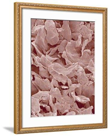 Fingernail-Micro Discovery-Framed Photographic Print