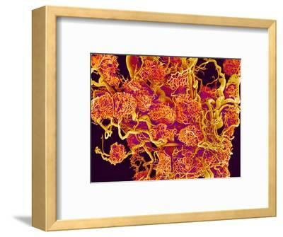 Blood Vessels and Corpus Luteum in Ovary of a Frog-Micro Discovery-Framed Photographic Print