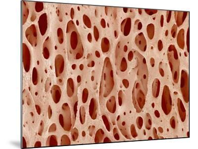 Bone tissue of a hen magnified x25-Micro Discovery-Mounted Photographic Print