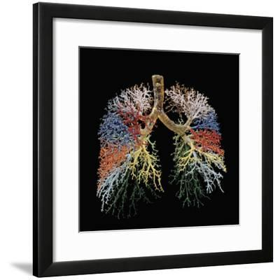 Resin Cast of Lungs, Bronchial Tree-Ralph Hutchings-Framed Photographic Print
